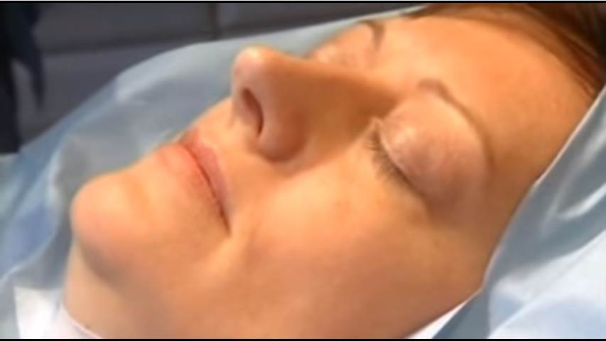 Video of how Dentist uses Hypnosis to remove two teeth